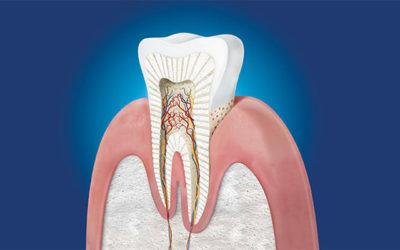 Come aiutare il dente a ripararsi naturalmente?