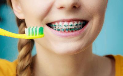 Il modo migliore per pulire la bocca quando hai l'apparecchio?