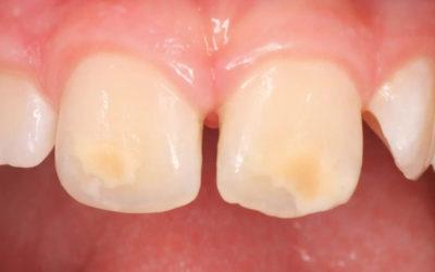Difetti dello smalto sui denti dei bambini: ecco i motivi