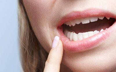 Diabete e parodontite, malattie con un forte legame