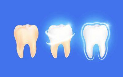 Remineralizzanti per lo smalto dei denti: quando e perché si consigliano?